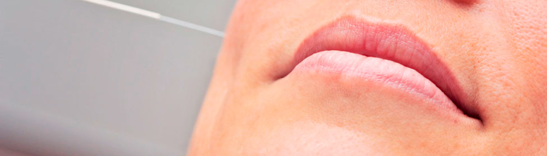 HNO Praxis Susann Nettlau - Akupunktur